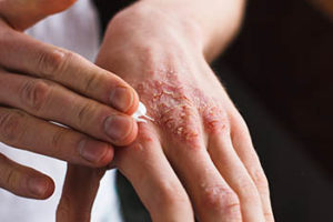 Anwendung Psoribene Gel auf der Haut