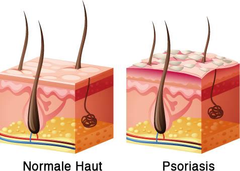 Psoriasis / Schuppenflechte - die obere Haut schuppt