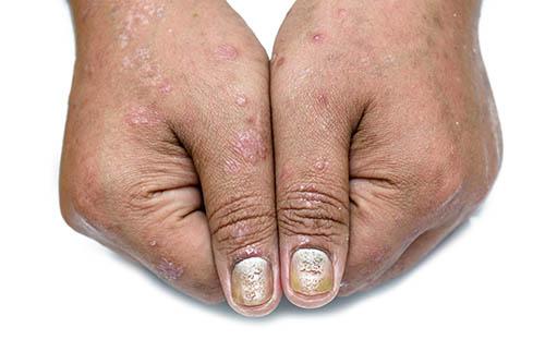 Psoriasis auch Nägel betroffen